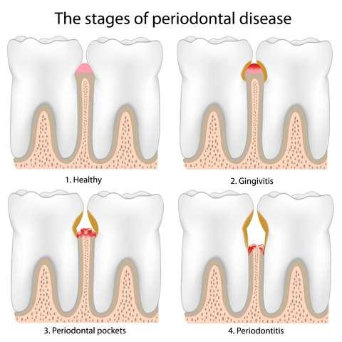 Periodontal disease woodland hills ca