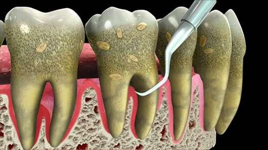 periodontal disease san fernando valley ca