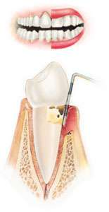 Stage 2 periodontal disease